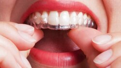 Taking Your Mouth Into Your Own Hands: DIY Braces