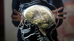 Weed Enthusiast Arrested for Keeping Human Brain Under His Porch