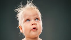 Scientists Discovered Which Genes Cause Uncombable Hair Syndrome