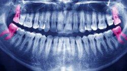 Wisdom Teeth Can Stay, Says Oral Surgery Organization