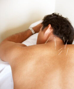 Acupuncture therapy may be as helpful as drug therapy and psychotherapy.