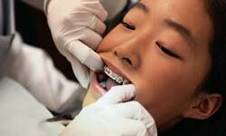 Braces are common at the preteen age, so good dental hygiene is especially important during this time.