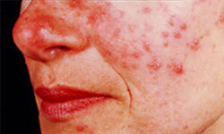 Rosacea is a chronic inflammation of the skin causing redness in the face.
