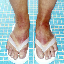 Don't end up with a flip-flop tan.
