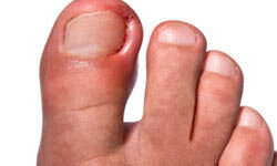 Don't attempt to fix that ingrown nail with your bathroom tools, as there is a high risk of infection.