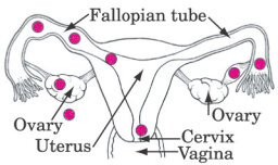 What is an ectopic pregnancy?