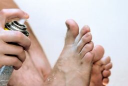 Quick Tips: 5 Home Remedies for Athlete's Foot