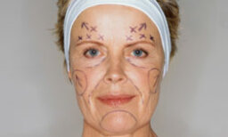 5 Most Common Cosmetic Surgeries