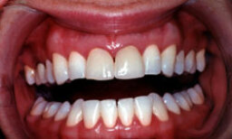 5 Explanations for Bleeding Gums