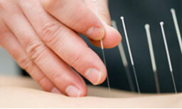 Acupuncture Overview