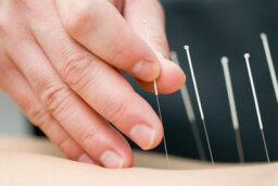 Can acupuncture and hypnosis treat infertility?