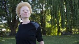 How Albinism Works