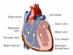 What's aortic valve disease?