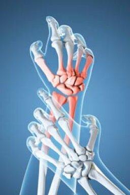 How Arthritis Works