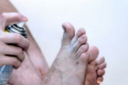 Athletes Foot Overview