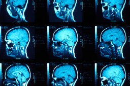 Could a brain scan tell you if you're going to become a criminal?