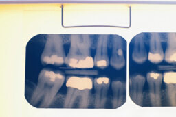 What are the different cavity classifications?