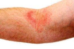Eczema Basics