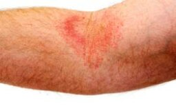 Quick Tips: Moisturizing Your Eczema