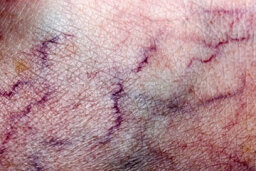 At a Glance: Varicose Veins