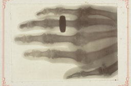 Who invented the X-ray?