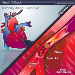 Could you have a heart attack -- and not know it?