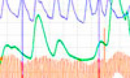 How Lie Detectors Work
