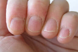 How can nails be signals of systemic disease?