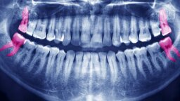 Wisdom Teeth Can Stay, Says Oral Surgery Organization