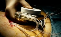 How does a pacemaker work?
