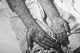 10 Oldest Known Diseases