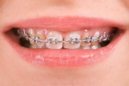 What are smart bracket braces?