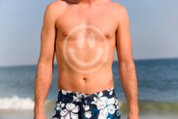 What is sunburn?