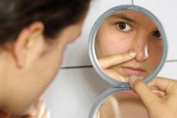 Does sweating clog pores?