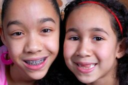Can you straighten your kids' teeth without braces?