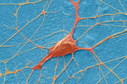 Will we ever be able to transplant neurons?