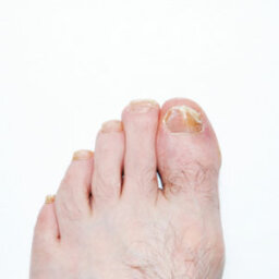 How to Treat a Nail Infection