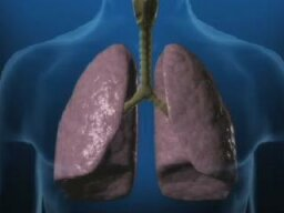 What are the stages of emphysema?