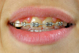 How to Whiten Teeth with Braces
