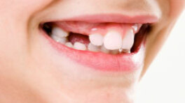 How Are Tooth Roots Removed Howstuffworks