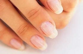 What do your fingernails look like?