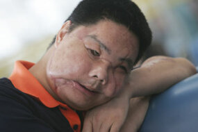 Li Guoxing in July 2006, after the first stage of his face transplant