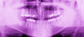 X-rays are the best way to make a match as far as forensic dentistry is concerned.