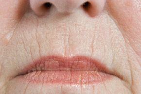 Lip lines are a natural sign of aging. They are most commonly found on smokers.