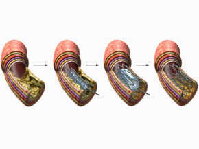 The key stages in an angioplasty procedure: A catheter, stent and balloon are inserted into a blocked part of a coronary artery to open up the passageway.