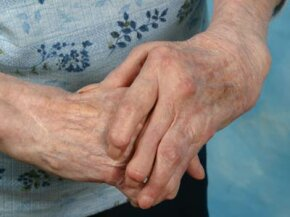 When rheumatoid arthritis affects the hands, it can change their appearance.