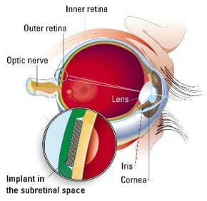 Here you can see where the ASR is placed between the outer and inner retinal layers.