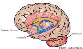 The brain of a child with autism has an abnormal corpus callosum, amygdala and cerebellum.