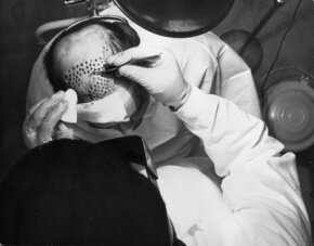 Dr. Jirayr Tezal performs a hair transplant operation in an American clinic in 1965. With each graft containing 8-12 hairs, a receding hair line may require 50-200 grafts and extreme baldness 700 - 800.