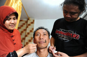 Leech therapists Sri Oentarti (L) and Asep Nugraha (R) treat a patients with leeches at their clinic on April 15, 2014 in Surabaya, Indonesia. Leeches are a very old medical treatment that is making a comeback.